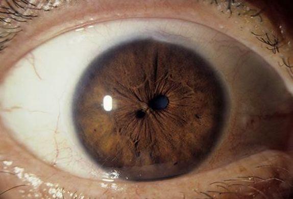 عضلات العين